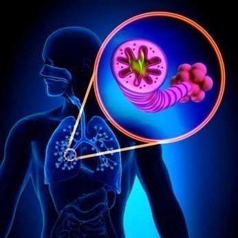 sintomas de asma