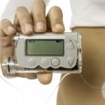 Bomba de Insulina o Que é, e Como Funciona?