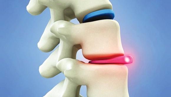 hernia de disco sintomas