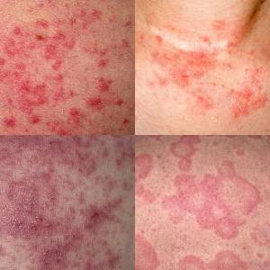 tipos de dermatite