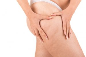 carboxiterapia gordura localizada