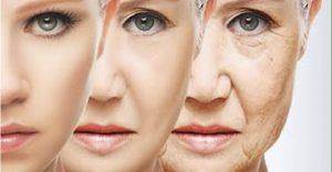 lifting facial rosto antes e depois