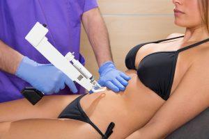 mesoterapia para celulite