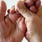 Dormência nas Mãos o Que Pode Ser? Qual Médico Procurar?