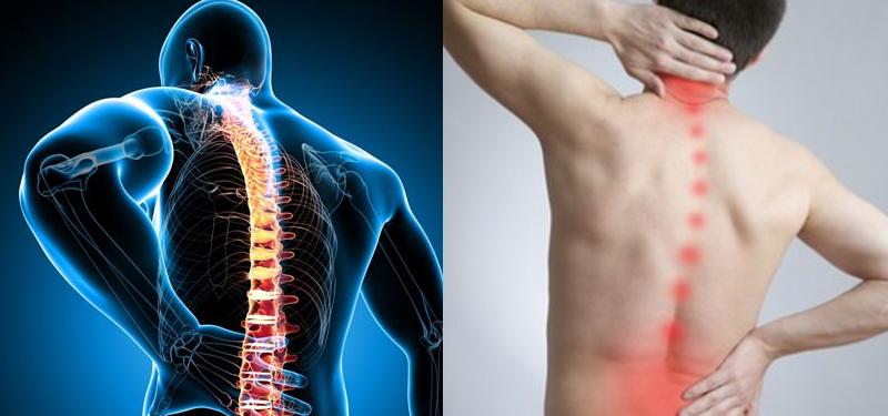 nervo ciático inflamado tem cura