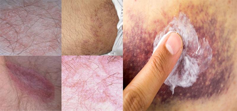 Alergia na virilha fotos 61