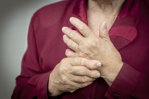 artrite reumatoide artigo