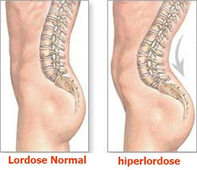 hiperlordose lombar