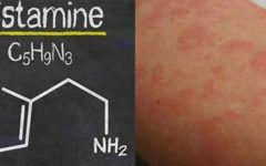 Você tem alergia? Saiba o que a histamina tem a ver com isso!