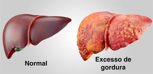 o que é gordura no fígado