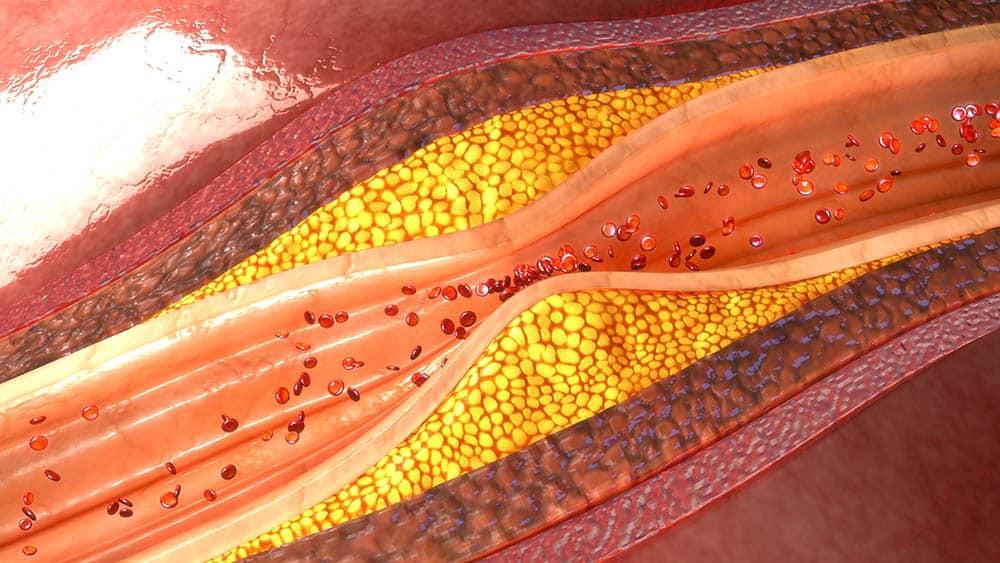 Mutações no DNA podem contribuir para níveis elevados de colesterol